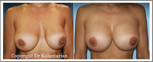 Garden Grove Breast implant replacement