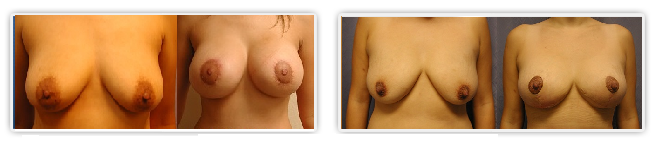 Orange County Mastopexy