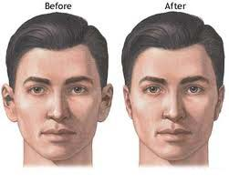 Trabuco Canyon Otoplasty