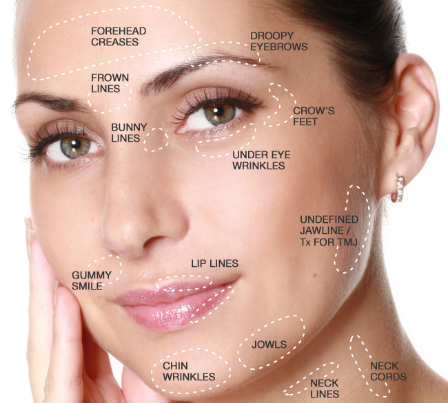 Getting the most from botox dr k plastic surgery orange county solutioingenieria Choice Image