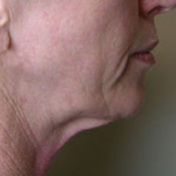 Neck and facelift before