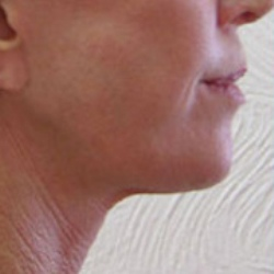 Neck and facelift after