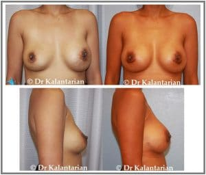 Breast implant replacement before and after