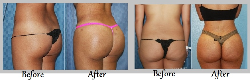 Fresno Buttock augmentation